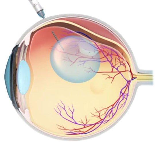 Пневматическая ретинопексия